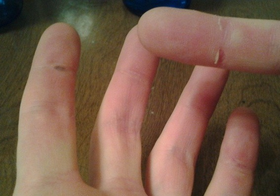 Two Blisters and a Split